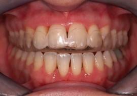 Disordini cranio mandibolari pratico